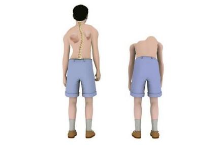 在强直性脊柱炎早期是否应该适当的做一些锻炼运动