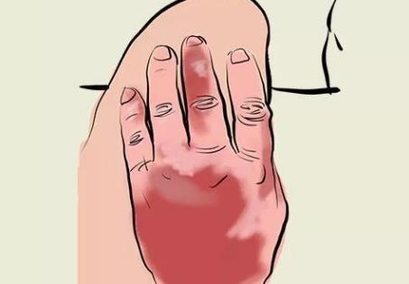 滑膜炎是什么,为什么会发生在膝关节处?